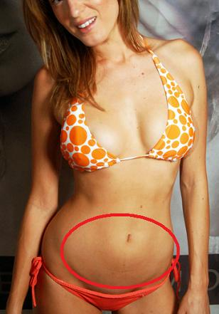 Parkot how to get rid of belly fat under belly button these models are lean heck you can see their ribs ccuart Images