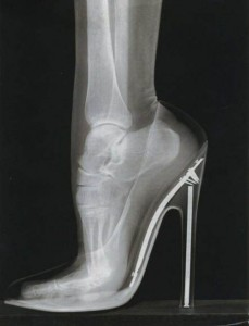 high heel x ray pic shortened calf and achilles