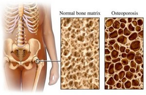 normal-bones-vs-weak-bones-300x195